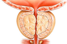 Tratamento Da Hiperplasia Benigna Da Próstata
